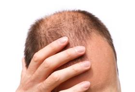 Bald-man