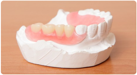 removable-partial-dentures