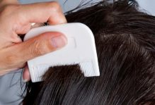 treating-head-lice